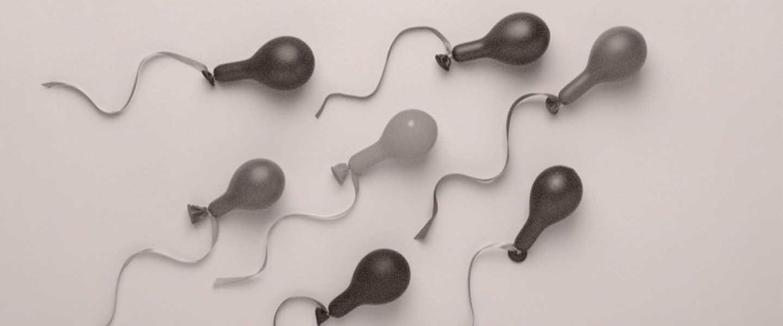 Gelb sperma farbe GELBES SPERMA: